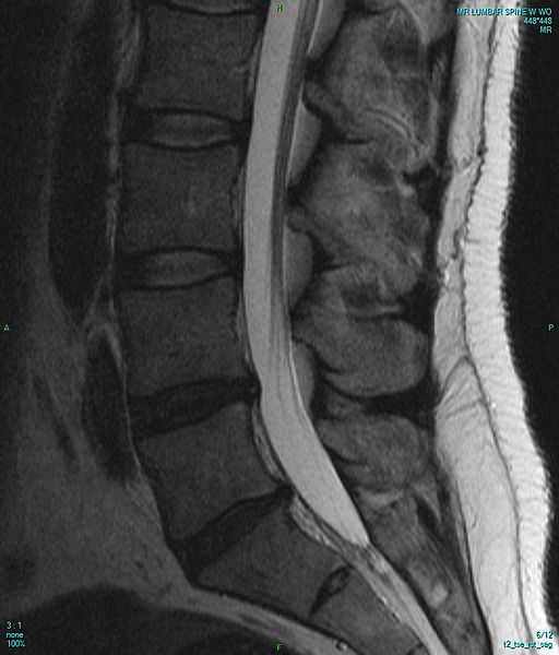 MRI of lumbar spine (X-ray of cervical spine (neck) AP (front) viewBy Stillwaterising (own medical image, work for hire) [CC0], via Wikimedia Commons)